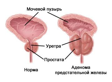 Лекарства от простатита из сша