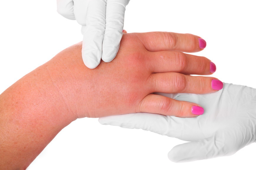 Swollen hand