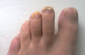 A_patient's_left_foot_-_after_ten_weeks_of_Terbinafine_oral_treatment