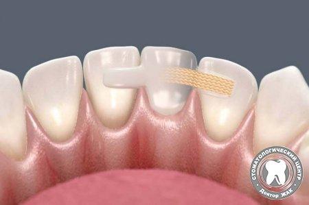 1526908810_protezirovanie-zubov-bez-obtochki